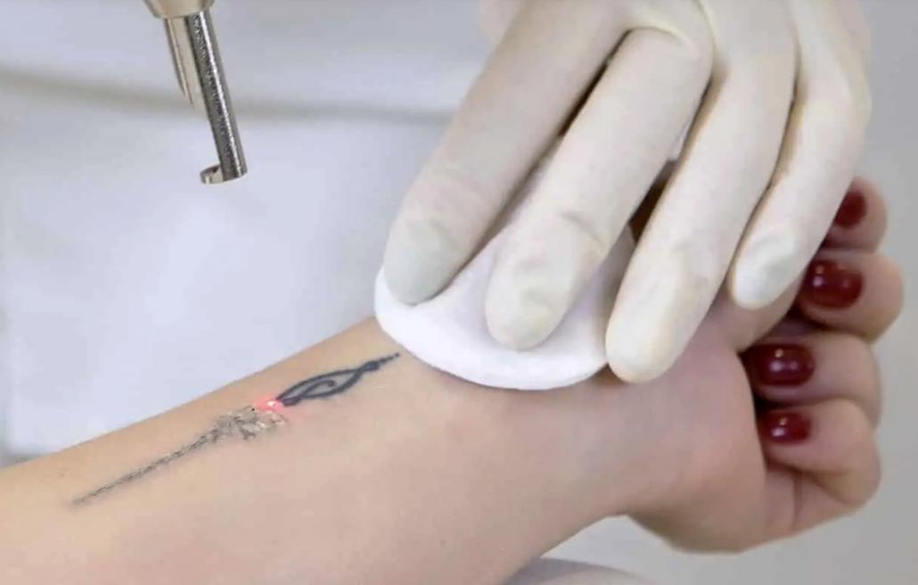 Tatto verwijderen bij The Beauty Venue